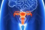 cancer de col de l'utérus